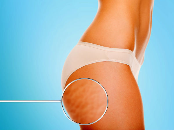 Ayurvedic Herbs To Get Rid Of Cellulite