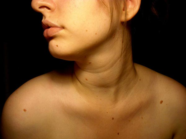 Moles Reveal If Your Partner Is Faithful Or Not - Boldsky com