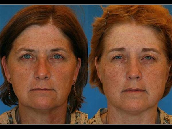 pictures of identical twin smokers and non smokers