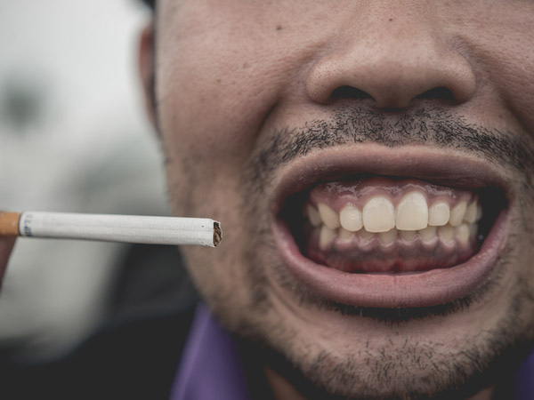 Do You Smoke? Here Is How It Can Affect Your Oral Health