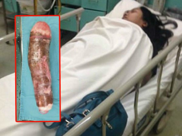 Girl Who Used Cassava For Pleasure & Landed In A Hospital!