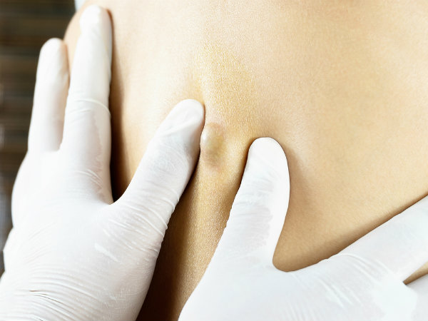 Top Home Remedies For Sebaceous Cyst Removal - Boldsky com
