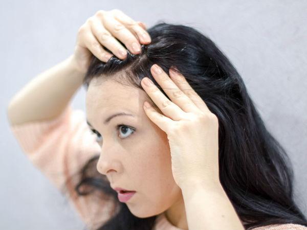 DIY: Remedies To Get Rid Of Premature Grey Hair