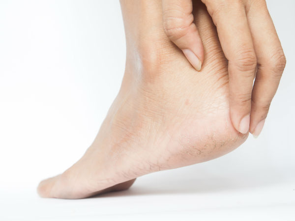 DIY Solutions For Cracked Heels