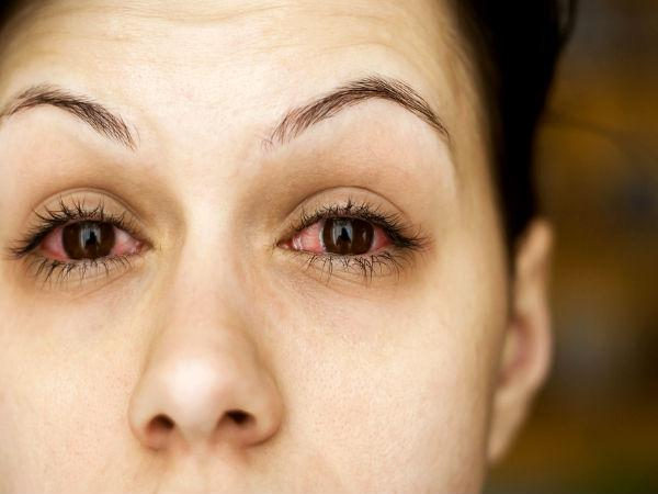 Monsoon Maladies: How To Prevent Redness & Swelling Of Eyes