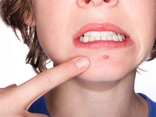 Treatment for facial boils