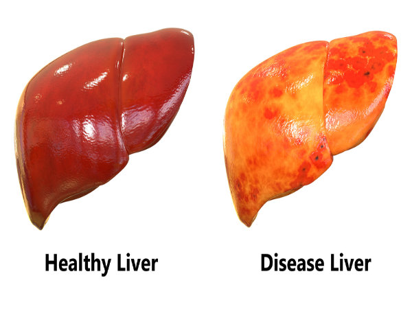 Liver Diet Foods To Avoid