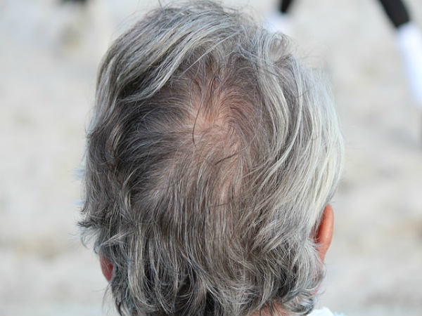 causes of premature graying of hair