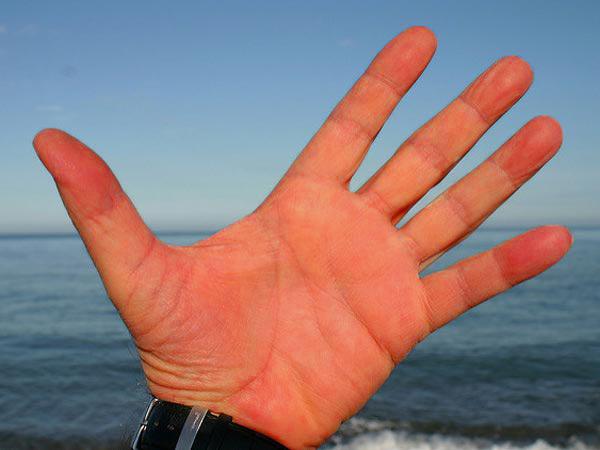 Kenali Kesehatan Anda dari Warna Telapak Tangan!