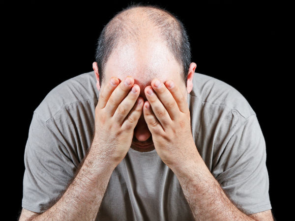male pattern baldness symptoms