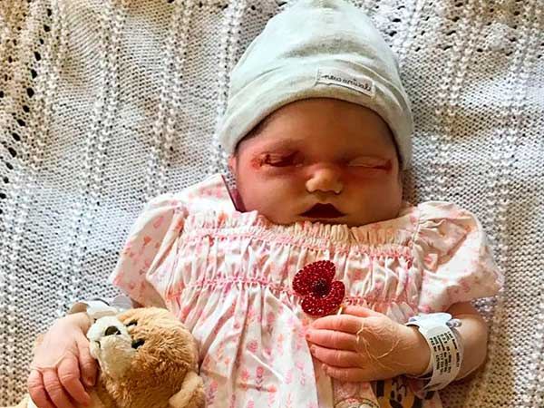 Real Life Story Mum Shared Pictures Of Her Stillborn Baby Who Was Poisoned In The Womb Boldsky Com