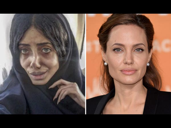 What! Did She REALLY Undergo 50 Surgeries To Look This Way?