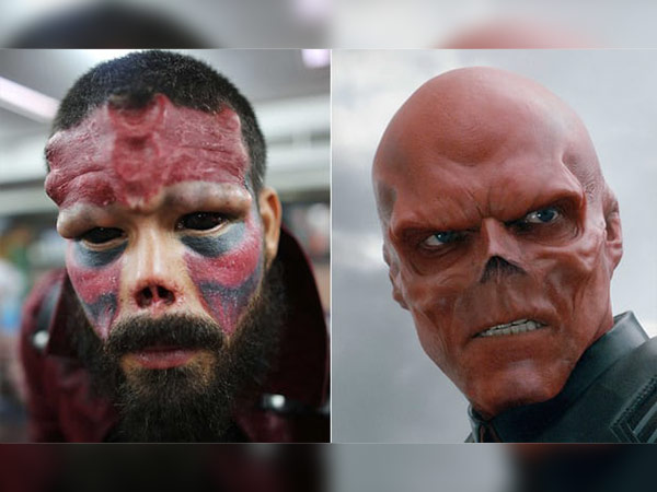 Real-life Stories: He Got His Nose Removed To Look Like His Favourite Character!