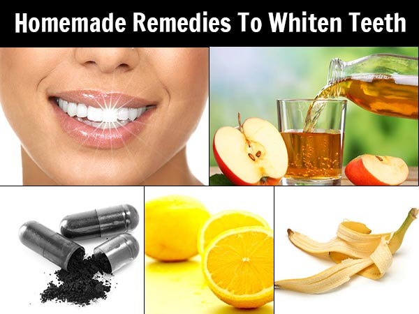 10 Homemade Remedies To Whiten Teeth