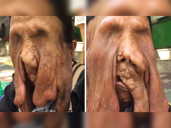 Granny With A Melting Face Refuses To Undergo A Surgery!