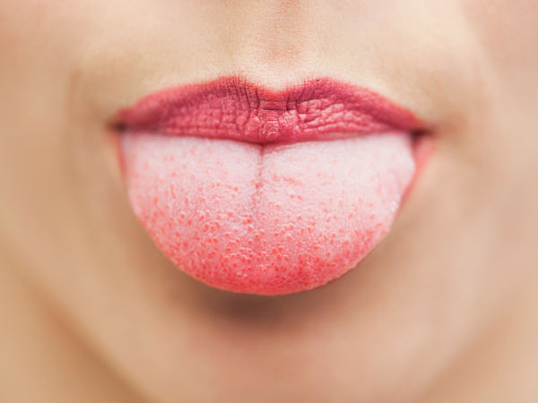 tongue blisters home remedies