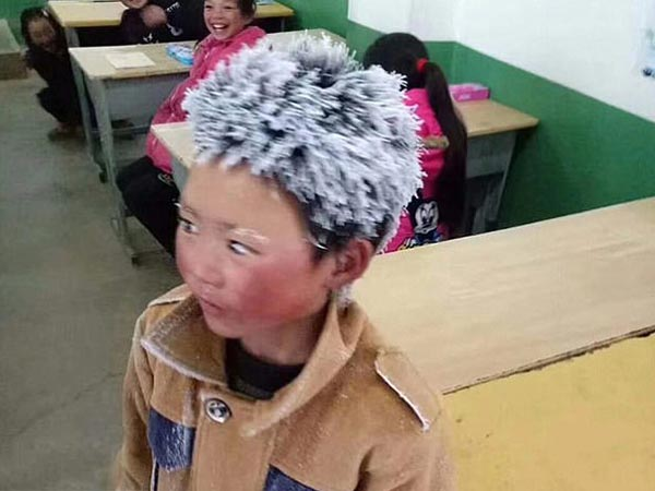 "Real Life Story: What Happened To The ""Frost Boy"" Of China"