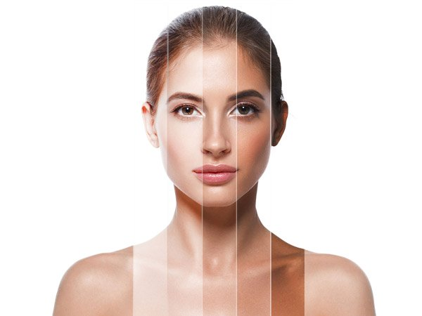 remedies for uneven skin tone