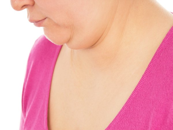 remedies for double chin