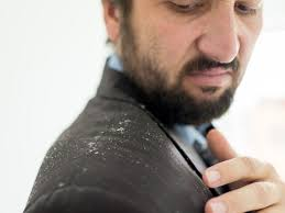 how to remove dandruff easily at home