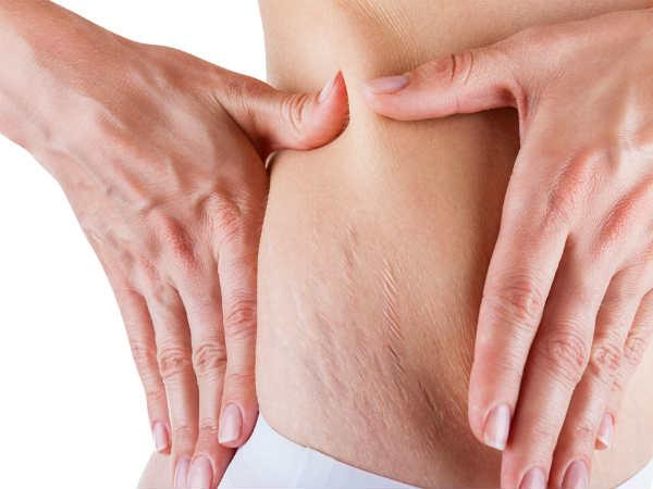 16 Home Remedies to Get Rid of Stretch Marks