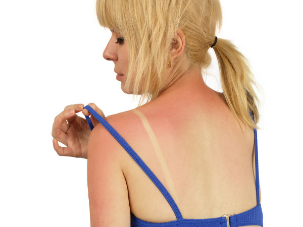9 Foods That Protect You From Sunburn