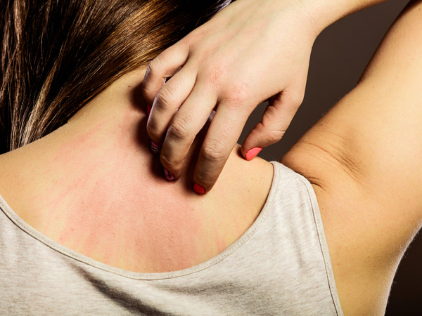 skin itching causes
