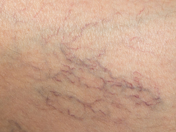 How To Get Rid Of Spider Veins Naturally