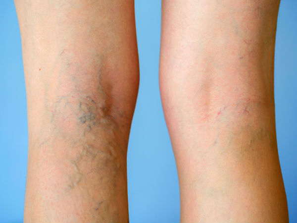 how to cover varicose veins