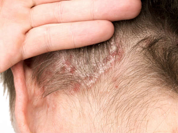 how to treat scalp scabs at home