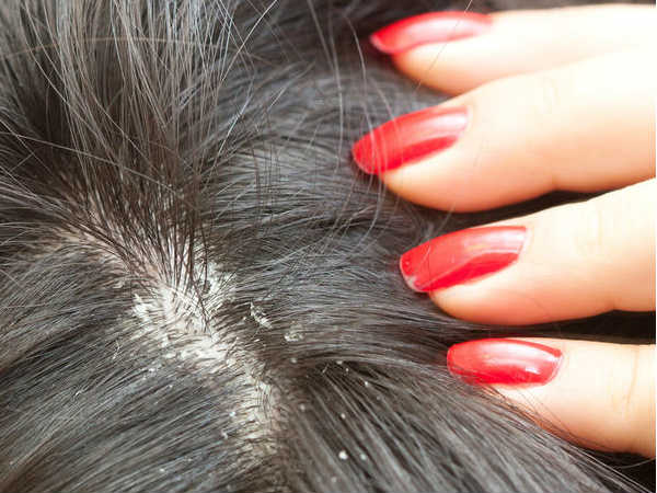 Does Orange Peel Help In Treating Dandruff?