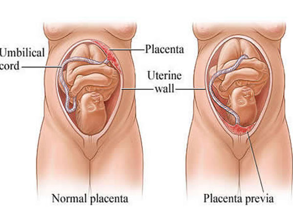 What Happens If Your Placenta Is Low During Pregnancy?