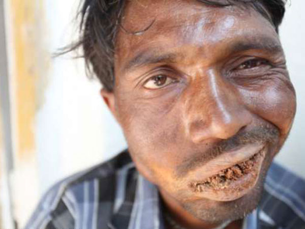 Man Who Eats 3 Kg Of Mud, Rocks And A Brick Every Day