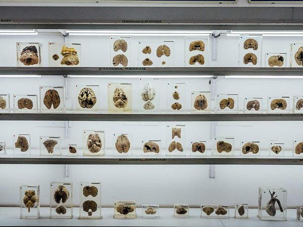 Bagian dalam organ manusia