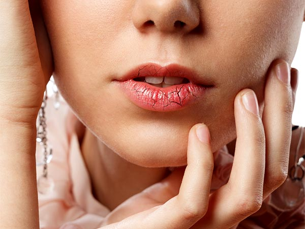 Dry, Chapped Lips? Try This Fabulous DIY Lip Oil