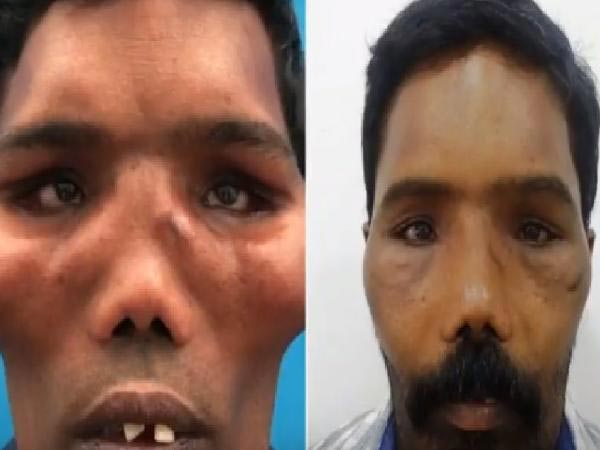 'Lion-faced' Man's Transformation After Life-changing Surgery