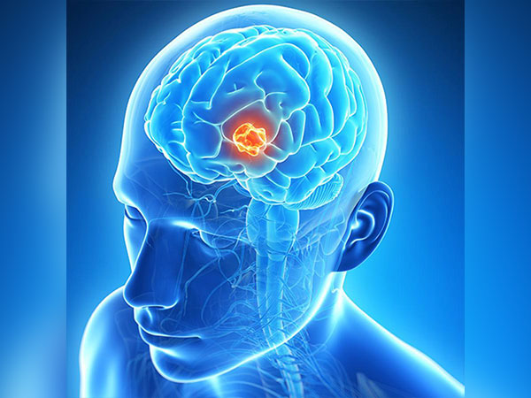 Glioblastoma: Causes, Symptoms, Diagnosis and Treatment