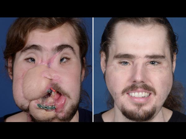 Man Got A Face Transplant After He Shot Himself!