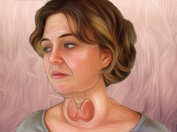 home remedies for treating goiter