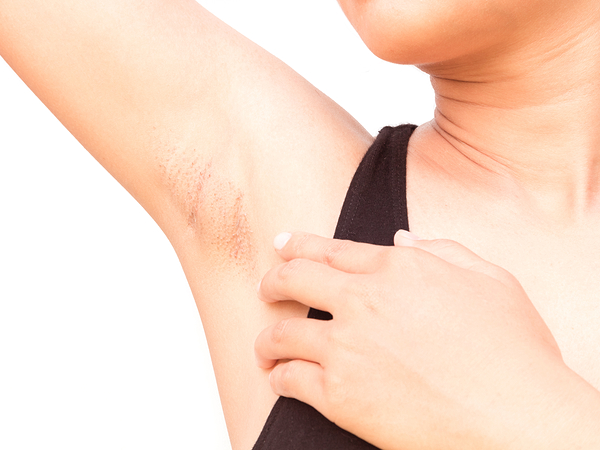 Underarm pimple treatment
