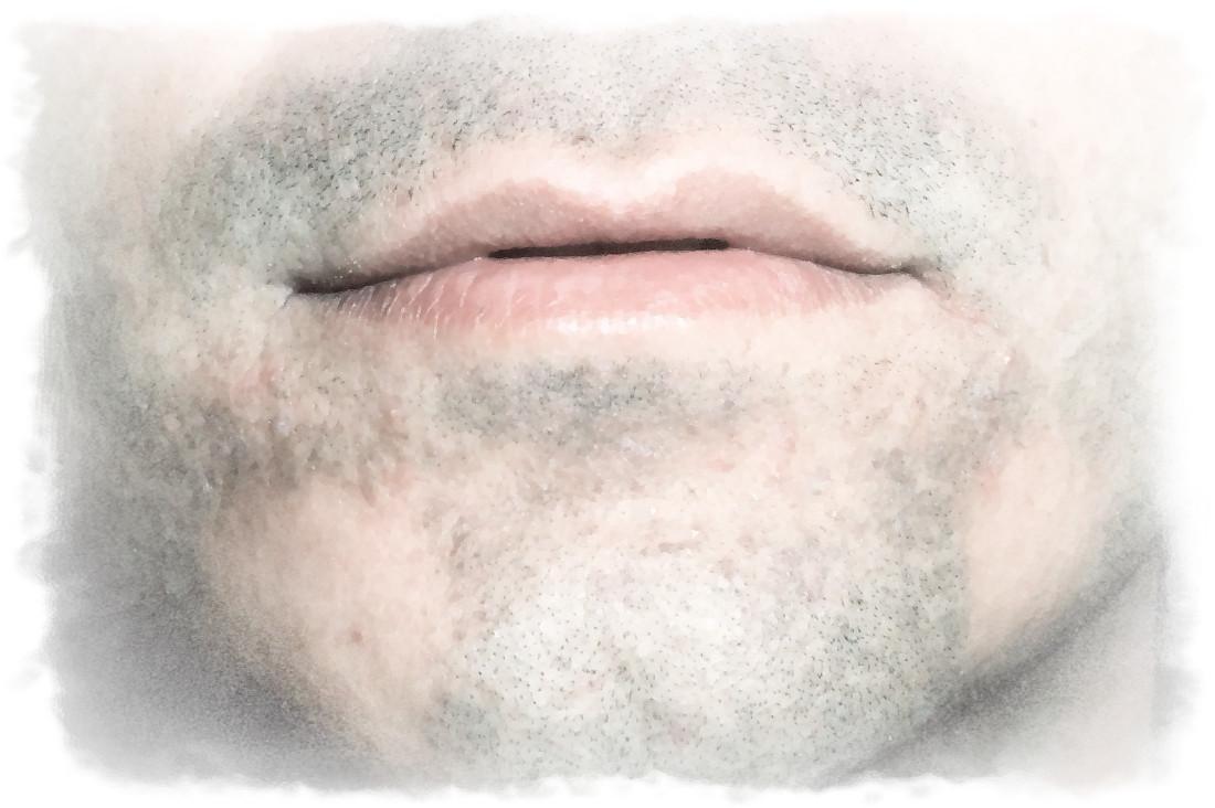 Vitiligo - ce este si cum se trateaza
