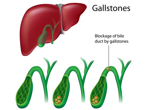 gallstones home remedies
