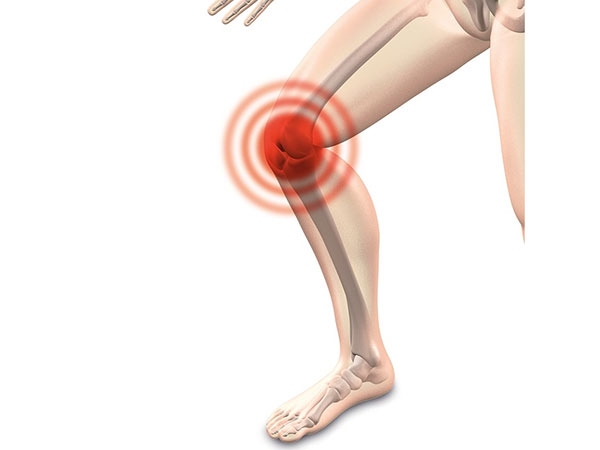 Knee Dislocation: Symptoms, Causes And Treatment