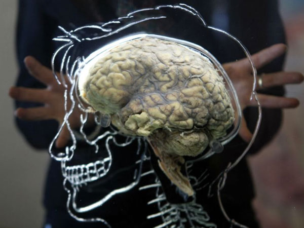 The Effects Of Ageing On The Brain