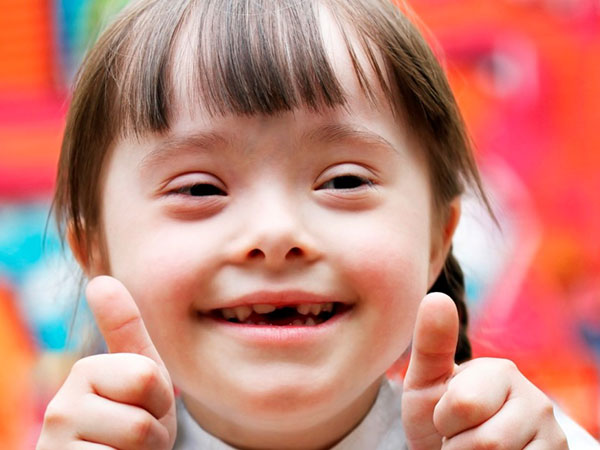 World Down Syndrome Day: Causes, Symptoms & Treatment Of This Genetic Disorder