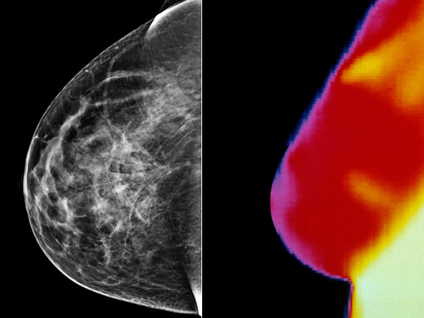 Mammography Vs Thermography