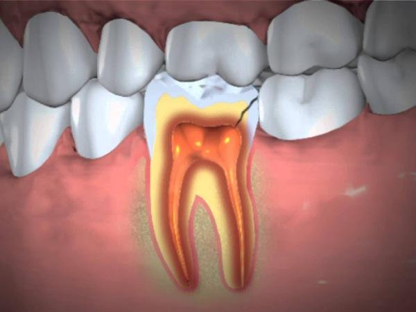 dental abscess treatment