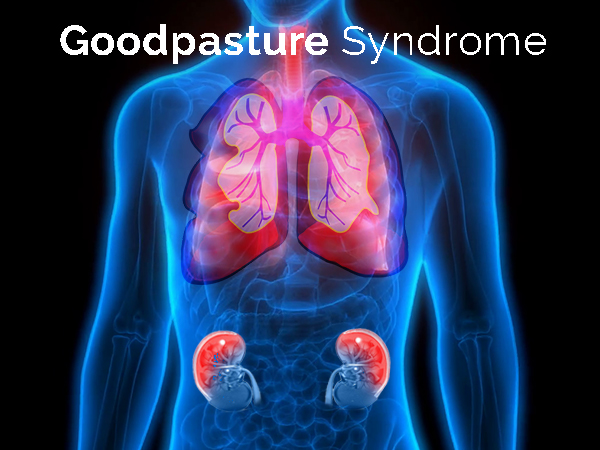 Goodpasture Syndrome (GPS): Causes, Symptoms, Diagnosis And Treatment