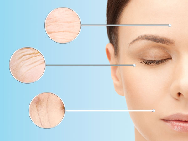 Facial Cupping: What Is It, Its Benefits & How It Is Done