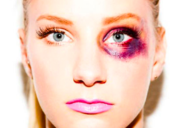 black eye causes